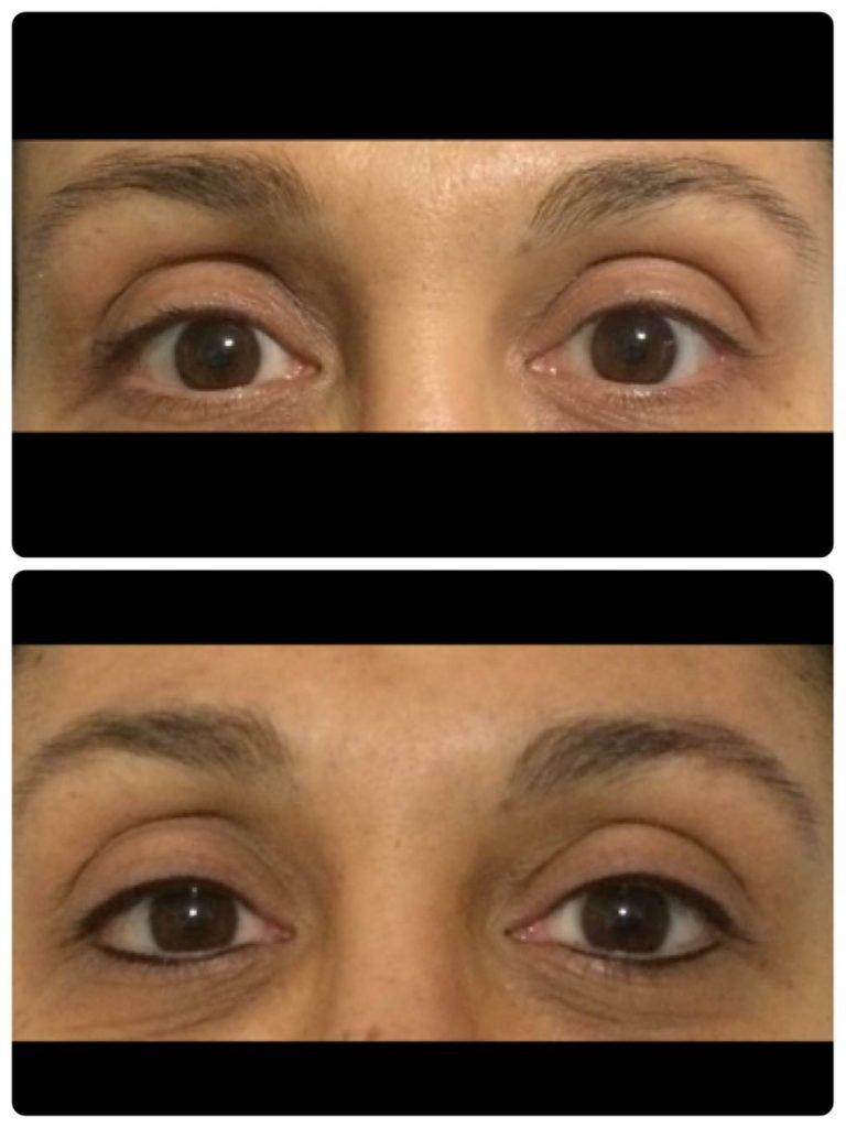 Leone Dibello | Permanent Make Up | Trucco Permanente | Occhi | Infoltimento infracigliare completo